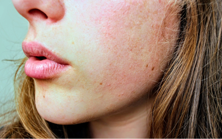 woman's cheek with acne scars