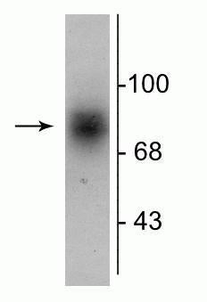 Western blot of human striatal lysate showing specific immunolabeling of the ~88 kDa DAT protein.