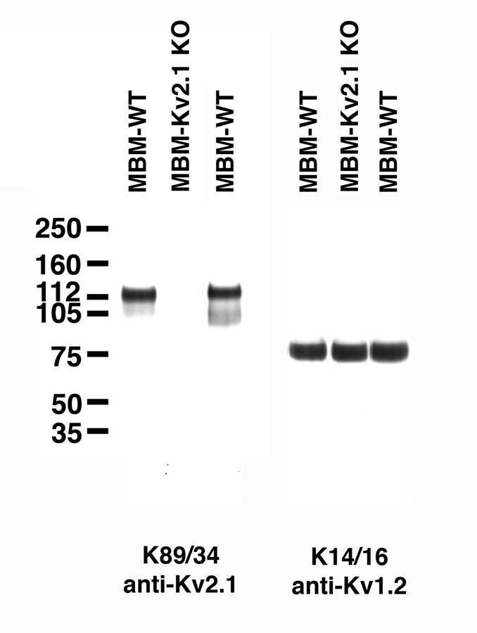 Immunoblot on adult mouse brain membranes from two wild-type mice (MBM-WT) and one Kv2.1 knockout (MBM-Kv2.1-KO) mouse. Samples courtesy of Dr. Jeanne Nerbonne, Washington University School of Medicine.