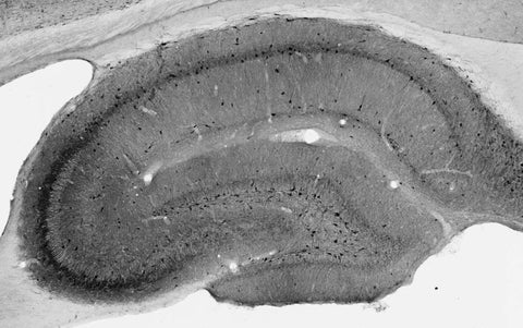Immunoblot against crude membrane fractions from whole mouse (MBM) or rat (RBM) brain and from human cerebellum [HBM(Cb)], cerebral cortex [HBM(Cx)] or hippocampus [HBM(H)] and probed with N308/48 (left) or N52A/42 (right) TC supe.