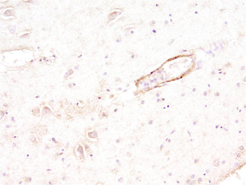 "Beta-Amyloid-positive ""neuritic plaque"" in cerebral cortex as seen in a post-mortum specimen taken from an Alzheimer's disease patient. Picture courtesy of Dr. Randy Woltjer, Oregon Health & Sciences University."