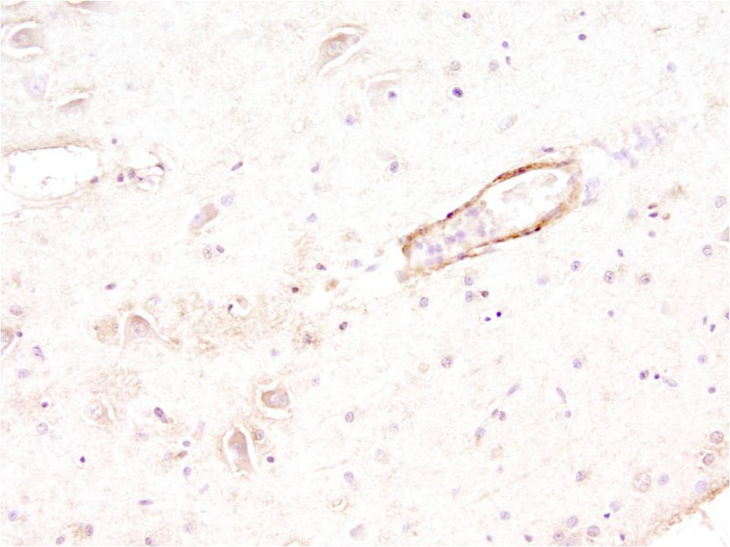 Immunohistochemistry of a capillary showing beta-amyloid peptide in the wall of the vessel.  Paraffin-embedded section of a human brain from a patient with diagnosed Alzheimer's Disease. 1' antibody -- 1:500; 2? antibody -- 1:1000 HRP-Goat anti-chicken IgY (Aves Labs) Dr. Randy Woltjer, Dept Pathology, OHSU