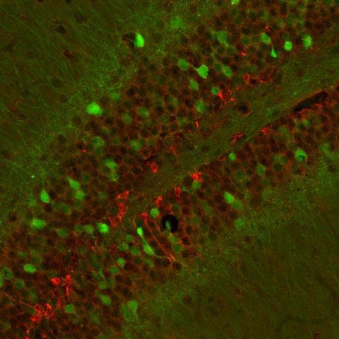 Doublecortin (DCX, Aves Labs, 1:1000 dilution) staining (GREEN) of neuroblastoma cells in culture.  RED staining is a Golgi apparatus marker. Page Balisch (University of Arizona)