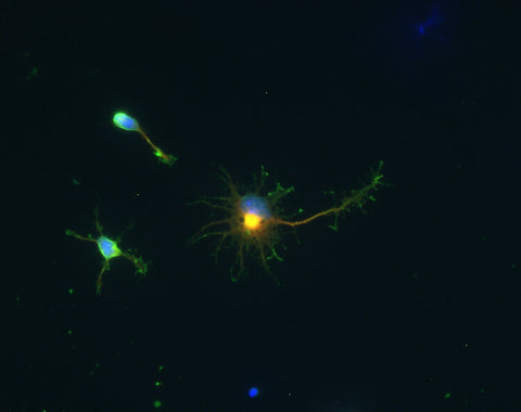 Sph21 neuroblastoma cells in culture.  Fixed with 4% paraformaldehyde.  GAD.1 (GREEN, 1:1000 dilution) immunoreactivity.  Phalloidin (F-actin) (RED) staining.  DAPI (BLUE) staining.  Photomicrograph from Page Balich (Univ. Arizona).