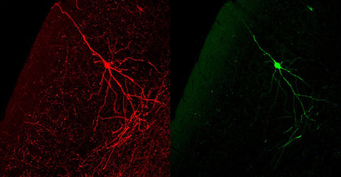 Co-localization of GFP immunoreactive neurons (GREEN) and Tryptophan Hydroxylase-positive neurons (RED) in a tissue section through the midbrain region of an adult mouse.  It isn't clear what caused the GFP-positive cells to express GFP immunoreactivity.