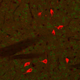 ChAT-immunoreactivity (RED) in cholinergic neurons within the mouse caudate nucleus in a paraformaldehyde-fixed (4%) paraffin-embedded section of a transgenic adult male C57Black6 mouse. The green staining is low-level GFP immunoreactivity in this transgenic animal. Dr. Felix Eckenstein, University of Vermont