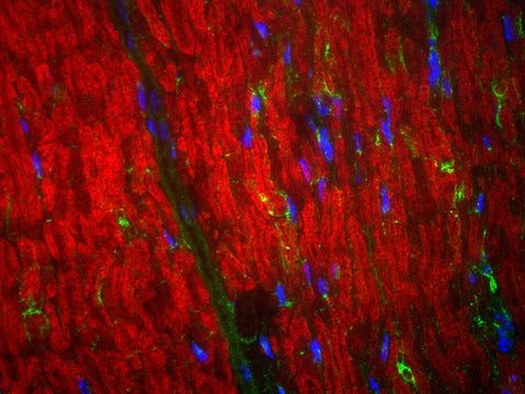 Immunohistochemical staining of MBP (RED) in the hippocampal region of a transgenic adult mouse brain. This particular transgenic mouse expresses low levels of GFP autofluorescence under control of an actin promoter region. The anti-MBP antibody (Aves Labs) was used at a 1:1000 dilution. Dr. Felix Eckenstein, University of Vermont.