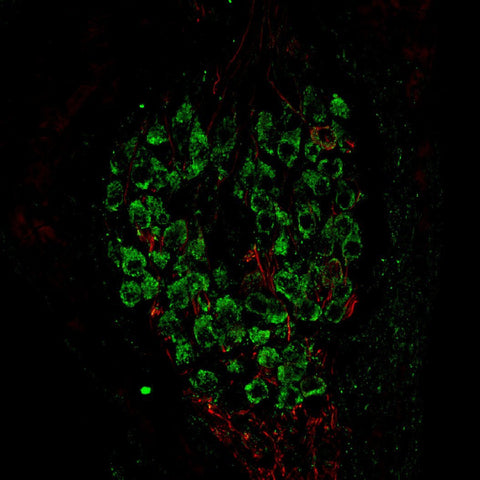 Metabotropic glutamate receptor type 1 (mGluR1, 1:1000 dilution, Aves Labs Cat.# ER1) immunoreactivity (GREEN) and neurofilament-M (NF-M, Rockland, rabbit antibody, 1:500 dilution) immunoreactivity in a tissue section through an e18 mouse cochlear