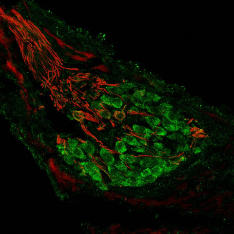 Metabotropic glutamate receptor type 2 (mGluR2, 1:1000 dilution, Aves Labs Cat.# ER2) immunoreactivity (GREEN) and neurofilament-M (NF-M, Rockland, rabbit antibody, 1:500 dilution) immunoreactivity in a tissue section through an e18 mouse cochlear ganglion.