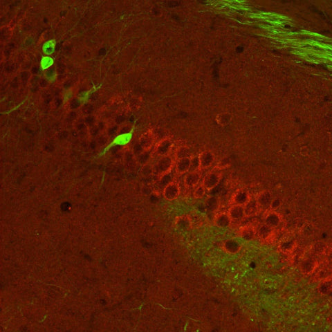 Metabotropic glutamate receptor type 5 (mGluR5, 1:1000 dilution, Aves Labs Cat.# ER5) immunoreactivity (GREEN) and neurofilament-M (NF-M, Rockland, rabbit antibody, 1:500 dilution) immunoreactivity in a tissue section through an e18 mouse cochlear ganglion.