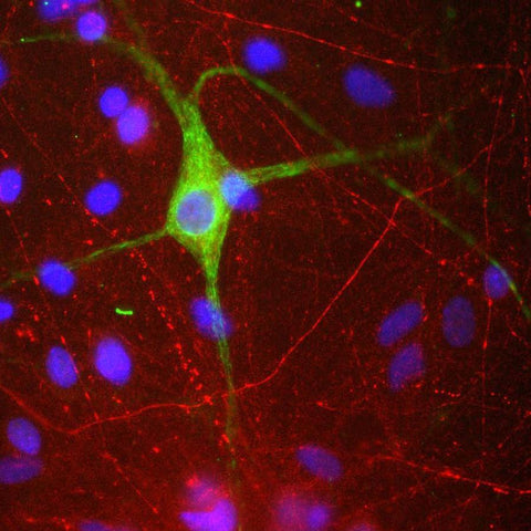 Rat mixed neuron/glial cultures stained with anti-Peripherin (green) and rabbit anti α-internexin (red).  Nuclei are stained with DAPI (blue).