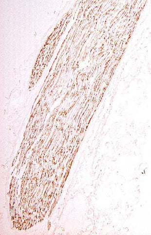 In the image (a tissue section through an adult sciatic nerve), Po (green staining) can be seen in the myelin and Schwann cell processes surrounding the nodes of Ranvier. In this photomicrograph, rabbit antibodies against LAMP (lysozome-associated membrane glycoprotein) (red staining) serves as the counterstain, and DAPI (blue staining) allows visualization of nuclei.