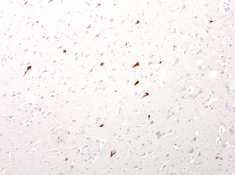 Immunohistochemical presence of tau in neurofibrillary tangles in cortical neurons of an Alzheimer's Disease patient.  Anti-Tau antibody (Aves Labs, 1:10,000) was incubated with formalin-fixed, paraffin-embedded sectioned material from Alzheimer's brains.  Primary antibody was visualized with HRP-labeled goat anti-chicken IgY.  Dr. Randy Woltjer, Oregon Health & Sciences University.