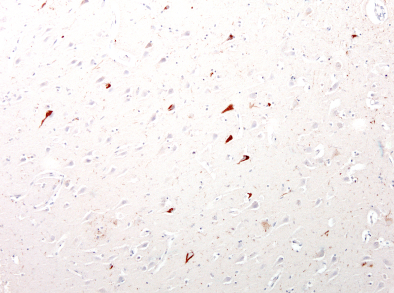 Immunohistochemical presence of tau in a neurofibrillary tangles in cortical neurons of an Alzheimer's Disease patient.  Anti-Tau antibody (Aves Labs, 1:10,000) was incubated with formalin-fixed, paraffin-embedded sectioned material from Alzheimer's brains.  Primary antibody was visualized with HRP-labeled goat anti-chicken IgY.  Dr. Randy Woltjer, Oregon Health & Sciences University.