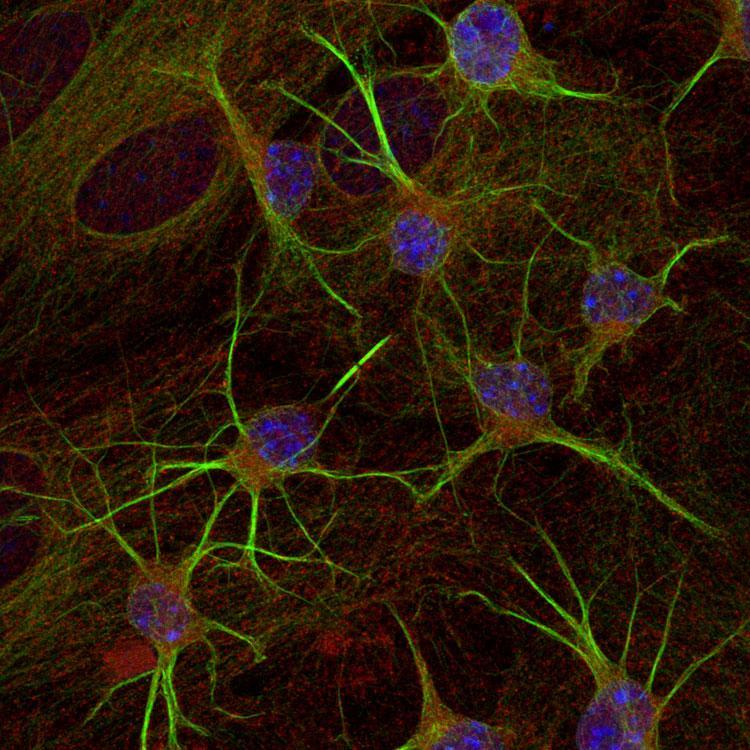 Immunostaining of paraformaldehyde-fixed (4%) cultures of SpH64 neuroblastoma cells showing β-Tubulin 3 immunostaining (GREEN, Aves Labs, 1:1000 dilution). RED staining is rabbit-anti-actin (Rockland, 1:1000); BLUE is DAPI nuclear counterstain. Secondary antibodies were fluorescein-labeled goat anti-chicken IgY (Aves Labs, F-1005, 1:1000 dilution); Texas Red-labeled goat anti-rabbit IgG. Page Balisch (University of Arizona).