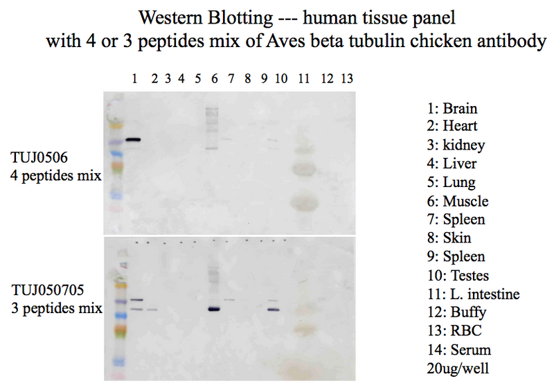 β-Tubulin 3 Immunoblot using homogenates of various organs. Performed at Kingfisher Labs.