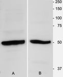 β-Tubulin 3 Immunoblot using homogenates of adult mouse brain (1:3000 dilution).  Hoda Ilias, Aves Labs.