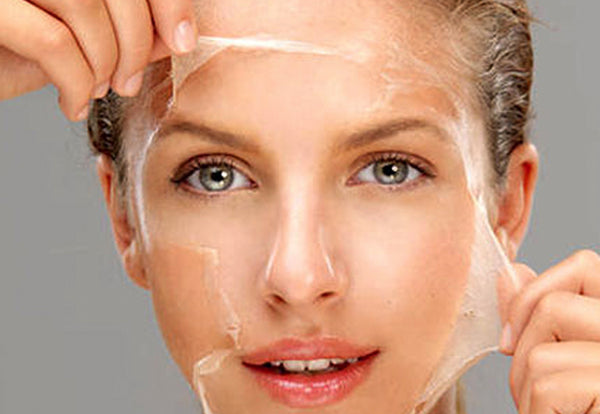 Chemical Peel for total rejuvenation (add on)
