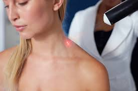 Cold Laser Treatment