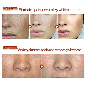 Dark Spot Corrector Skin Whitenings