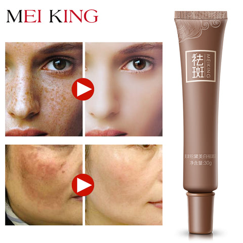 Image of Dark Spot Corrector Skin Whitenings