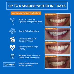 PrimeWhite Teeth Whitening Kit 8 Shades Whiter Infographic