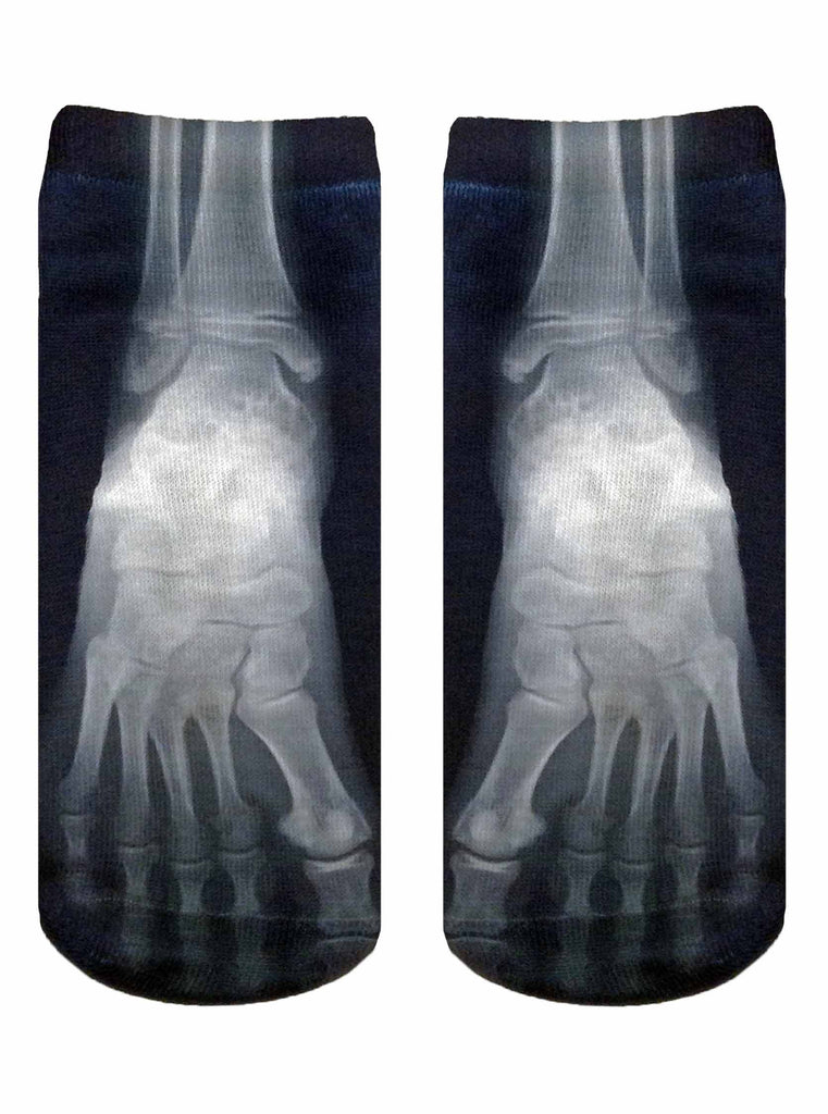 X Ray Ankle Socks