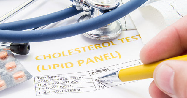 Some natural remedies for high cholesterol are worth your consideration, given that excess cholesterol is a major cause of heart disease.
