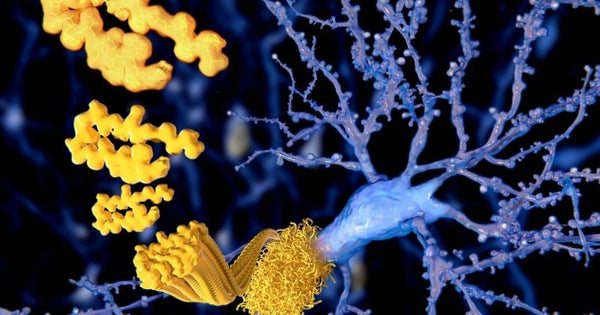 Despite Alzheimer's disease affecting the brain and IBM involving the muscles, the two conditions have one surprising factor in common: amyloid protein aggregates.