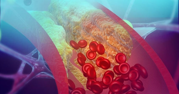 vascular aging can cause atherosclerosis and heart disease