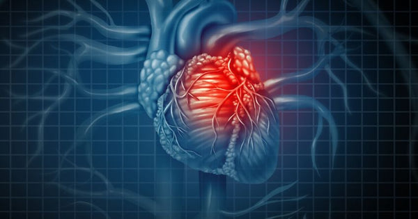 "During myocardial ischemia (lack of blood flow to the muscle tissue of the heart, commonly referred to as a ""heart attack""), blood flow is interrupted because of damage to one or more of the coronary blood vessels that irrigate the heart."