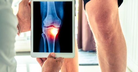 Osteoarthritis patients commonly experience painful and swollen joints due to a lack of cartilage between the joints.