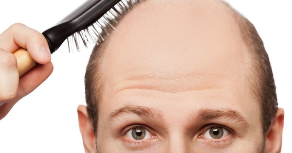 the causes of baldness range from family history to stress to medications