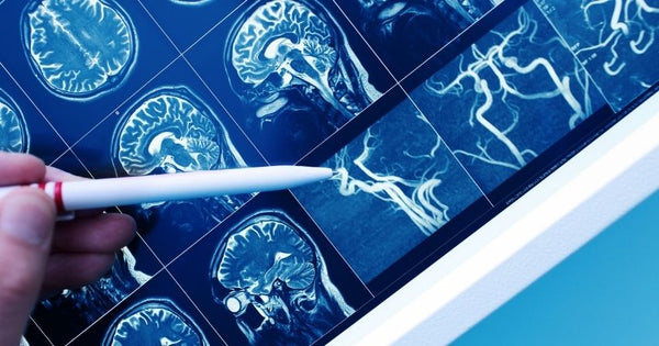 high blood sugar damages blood vessels and tissues in the brain, increasing the risk of dementia