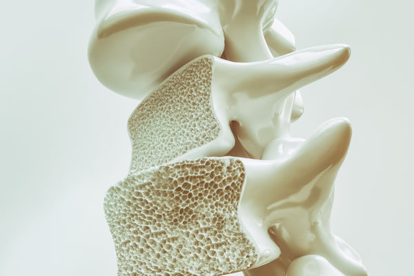 NMN battles steroid-induced osteoporosis