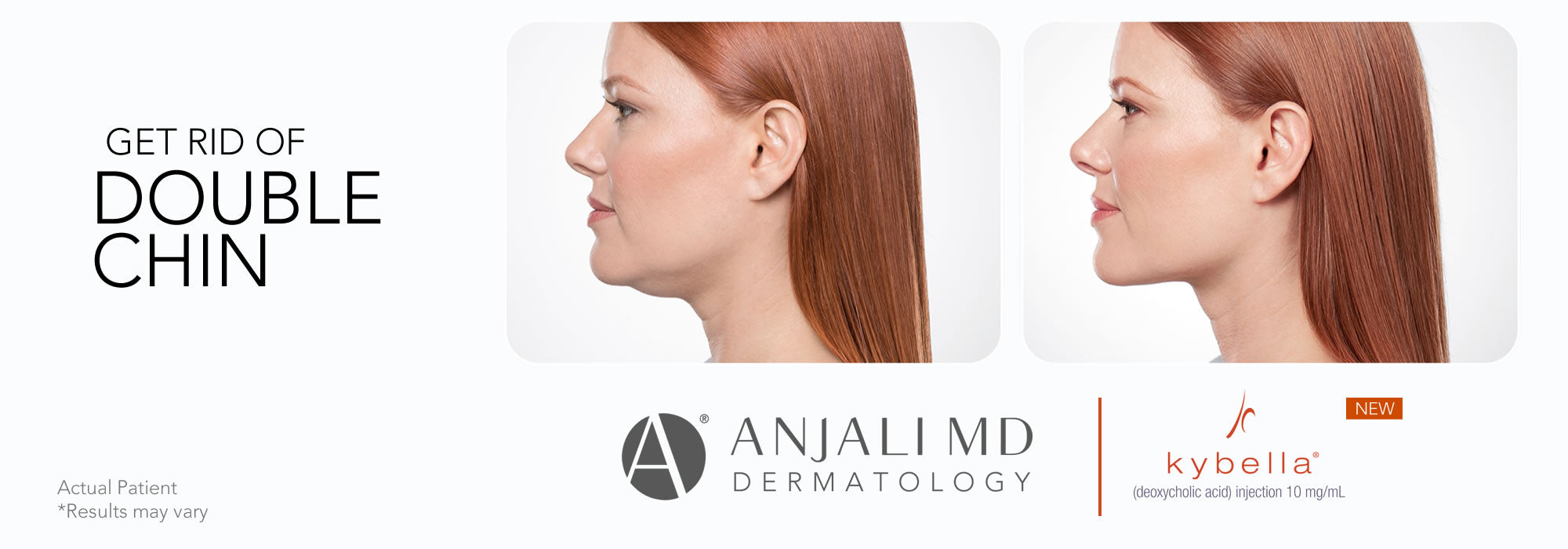 Eliminate Neck Fat 'Double Chin' Kybella Injection - Anjali MD Dermatology