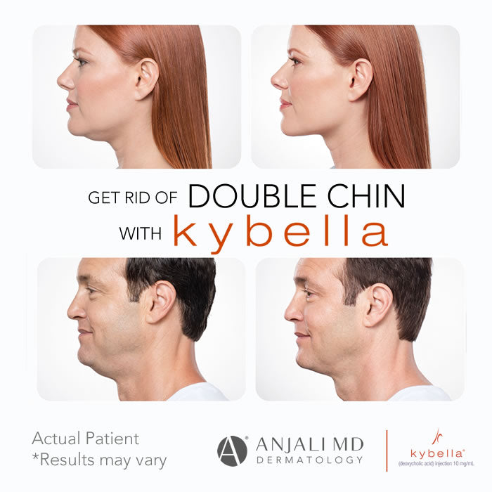 Get Rid of Double Chin with Kybella Injection - Anjali MD Dermatology