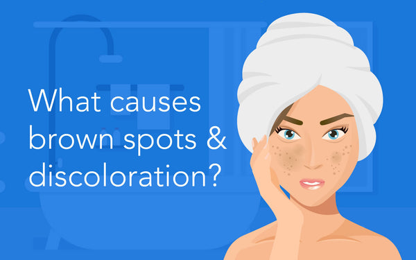 ANJALI MD Learn To Love You Skin, What causes brown spots and discolorations?