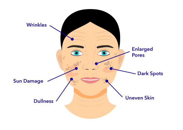 Face Diagram shows a womans face and arrows pointing at skin issues: Dark Spots, Wrinkles, Dull Uneven Skin, Sun Damage.