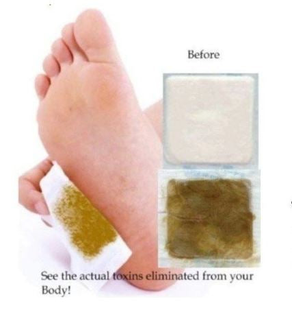 KINOKI Cleansing Detox Adhesives Foot Patches (4 boxes per order)