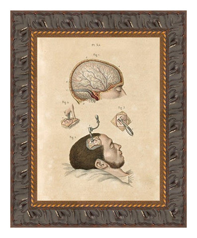 Trepanation Procedure