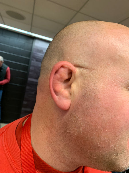 BJJ Cauliflower Ear