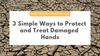 3 Simple Ways to Protect and Treat Damaged Hands