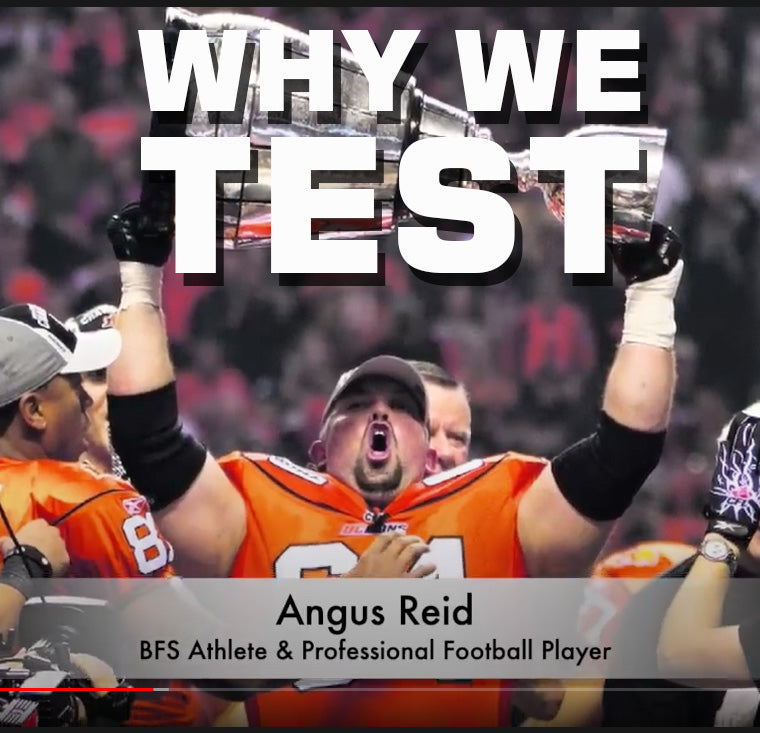 Why We Test