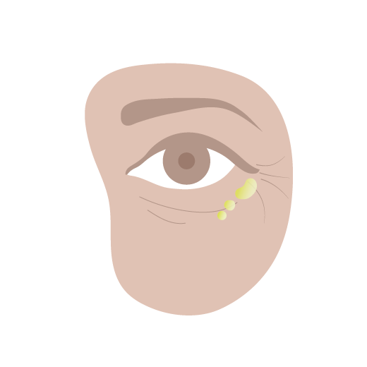 illustration showing where to apply Marula Oil under the eye