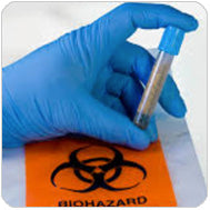 Gloved Hand Holding Needle Above Biohazard