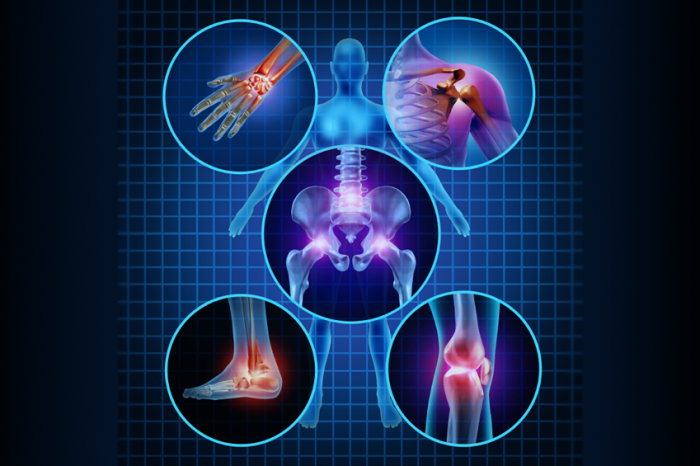Jane's Blog Arthritis - Repairing Joints Naturally