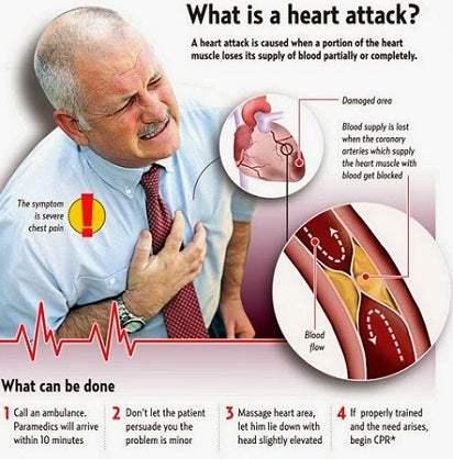 Jane's Blog Erectile Dysfunction and Heart Attack