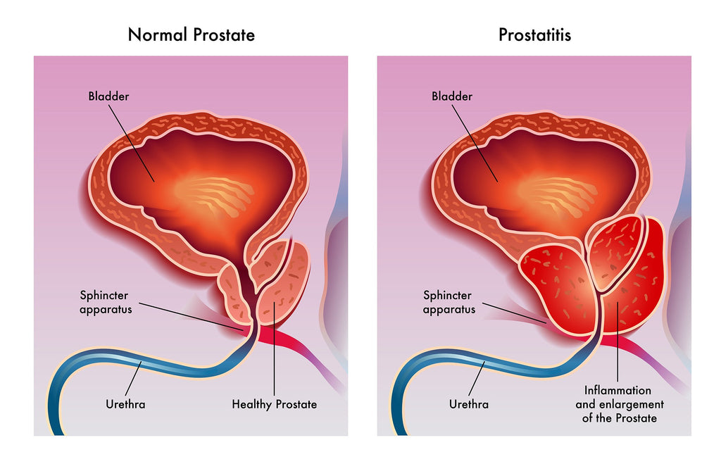 Jane's Blog Chronic Prostatitis Increases the Risk of Prostate Cancer