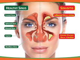 Jane's Blog Get Rid of Sinus Infections Without Prescription Antibiotics